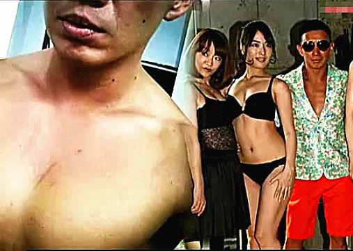 杜汶泽晒半裸照 称拍三级片胸部受伤