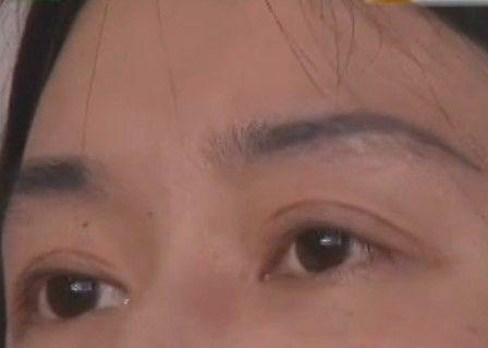 女士三次割双眼皮 现在出门戴墨镜