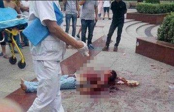 女孩与男友出门散步 遭遇前任报复砍断手