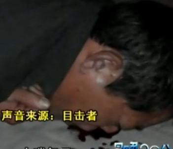 男子街头KTV唱歌时突然倒地 口鼻冒出鲜血