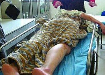 24岁少妇裸死自家床上 凶手服毒自尽
