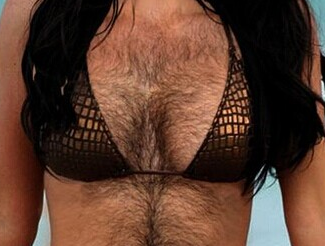 女子花40万丰胸失败 胸前长满黑毛似男人