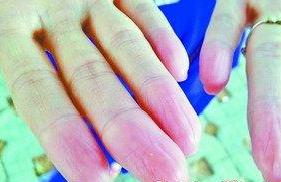 母子俩疑患罕见无指纹病 因无指纹处处碰壁