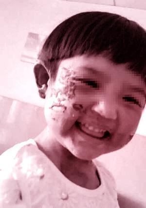 在网友提供的照片中,小女孩笑容天真可爱,但脸上布满了吓人的大