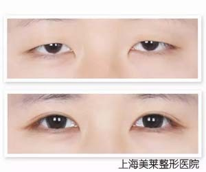 上海美莱韩式微创双眼皮 睛 彩哼不听