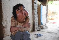 40岁农妇脸上长7个瘤