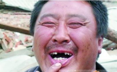济南拆迁队群殴村民 老汉被打掉牙