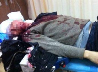 保时捷撞孕妇后逃逸 孕妇丈夫拦阻被撞死