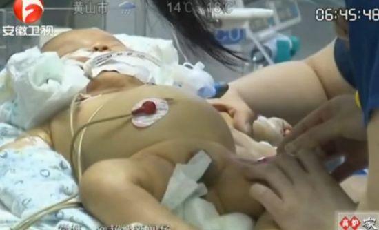 两个月大婴儿游泳不幸溺水生命垂危